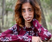 Lizzie Velasquez Dare to be Kind